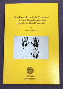 Botulinum Toxin in the Treatment of Hyperhidrosis and Dyshidrotic Dermatitis